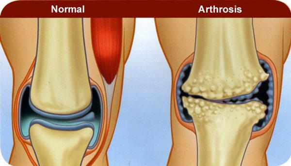 Artrose Knie Heup Voorlichtingsavond